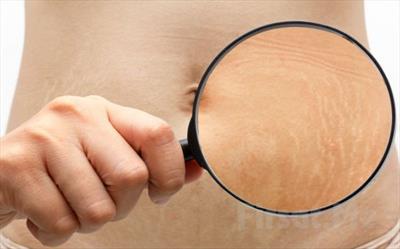 как появляются растяжки на коже