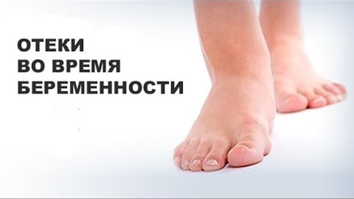 отекают ноги при беременности